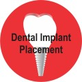 dental-impl
